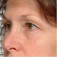Skin Rejuvenation and Tightening - Non-Ablative