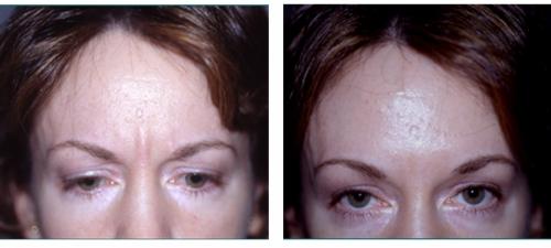 Botox  ( Botulinum Toxin )