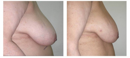 Scarless Liposuction Breast Reduction Before and After