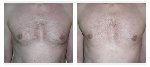Liposuction Breasts