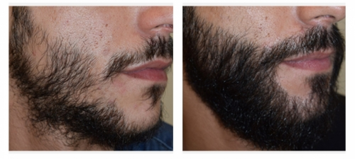 Artas Transplantation Before After