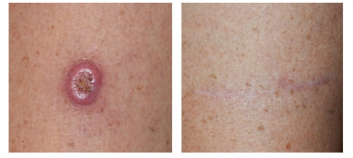 After squamous cell carcinoma surgery