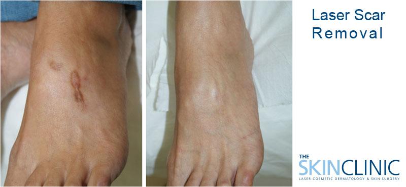 Laser Surgery Beirut Lebanon Skin Surgery Botox Laser